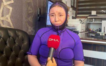 Tekirdağ'da eşinin benzinle yaktığı kadın: Öldü diyerek bıraktı